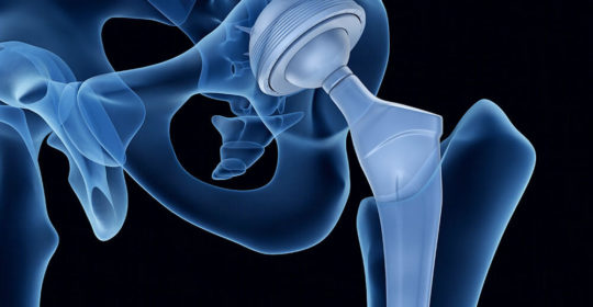 Shining the Spotlight on Anterior Hip Replacement