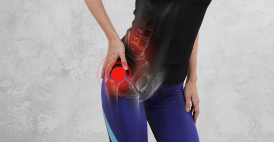 Femoroacatabular Impingement (FAI): What you need to know by Patrick S. Buckley, MD