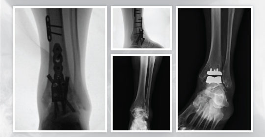 Ankle Replacement or Ankle Fusion for Painful Arthritis of the Ankle?