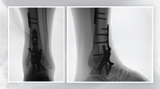 Ankle fusion at UOA