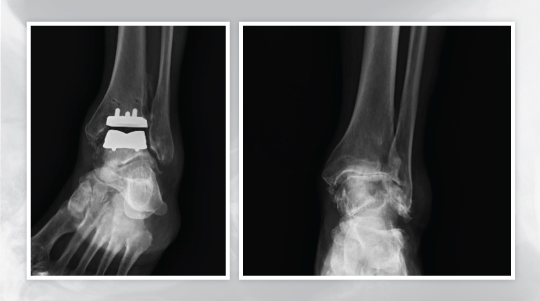 Total ankle replacement at UOA