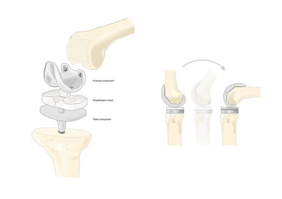 Prosthetic knee used in total knee replacement at UOA