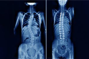 Scoliosis before and after